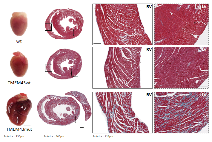 Mutation p.S358L in TMEM43 induces biventricular dysfunction and accumulation of fibrofatty tissue in the myocardium