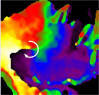 A rotor organizing atrial fibrillation in a sheep heart