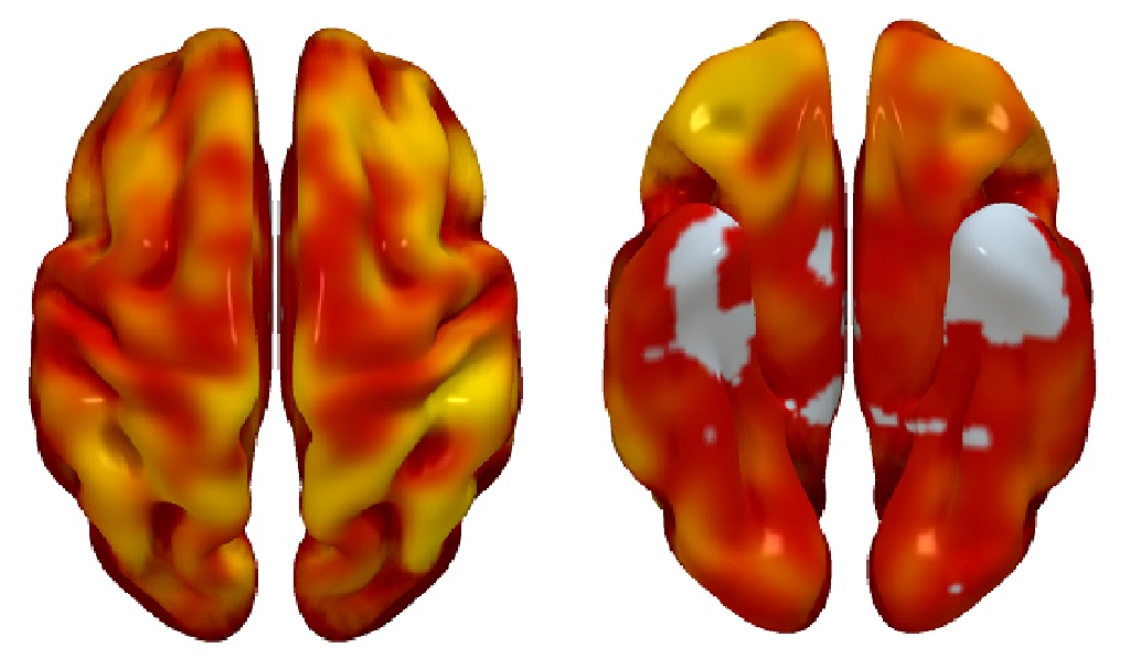 3D reconstructions of superior (left) and inferior (right) brain regions, showing regions with lower metabolism associated with the presence of atherosclerotic plaques in the carotid arteries. The color code indicates the magnitude of the observation (yellow, strong association; red, lower association). Gray indicates areas showing no association with carotid plaque presence