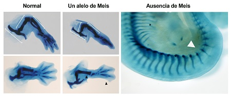 Skeletal staining of the inferior limb regions of normal embryos, embryos with a single Meis allele, and an embryo with complete absence of Meis. Embryos with a single copy of Meis lack the fibula and posterior digits (black arrow). Total absence of Meis prevents limb development (white arrow).