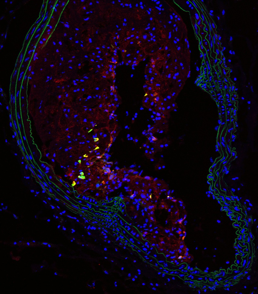 Nestin+ cells in an atherosclerotic plaque (yellow and red) in the brachial artery of an adult mouse. The layer of muscle cells (green) delimits the vessel lumen