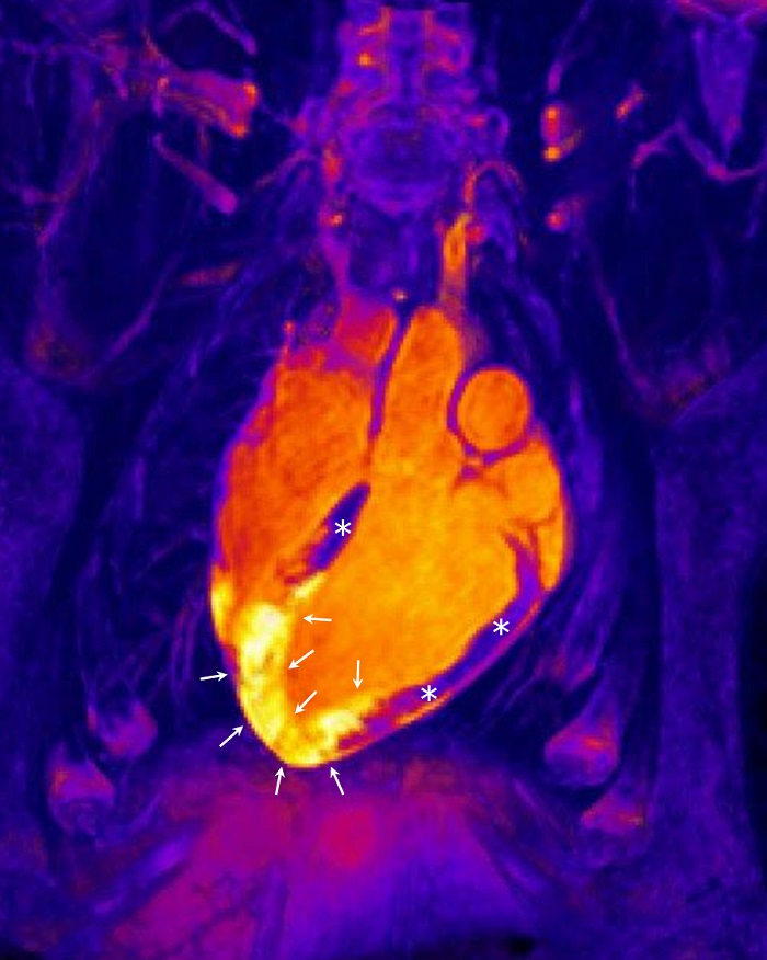 A 3-dimensional magnetic resonance image form a patient who has undergone an acute myocardial infarction. The heart is visible in the center of the image. Healthy (non-infarcted) cardiac muscle is indicated by asterisks, whereas arrows point to the infarcted region. MRI can reveal the extent of the area affected by inflammation after a heart attack (the yellow infarcted region marked by arrows). Serial MRI studies reveal thta this inflammatory reaction appears immediately after the infarction but then rapid