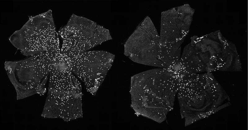 Imágenes de las coroides de ratones control (izquierda) y tras la eliminación de IHH de las células endoteliales (derecha), lo que resulta en una disminución del número de mastocitos (puntos blancos).