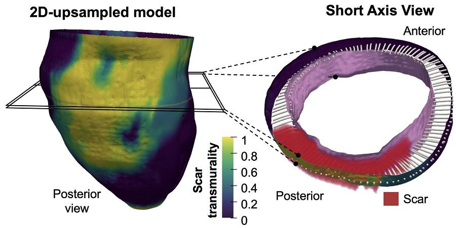Representación de la metodología empleada para la evaluación tridimensional del miocardio infartado y su grado de transmuralidad en un caso representativo de imágenes de resonancia magnética cardíaca obtenidas con secuencias convencionales de realce tardío 2D