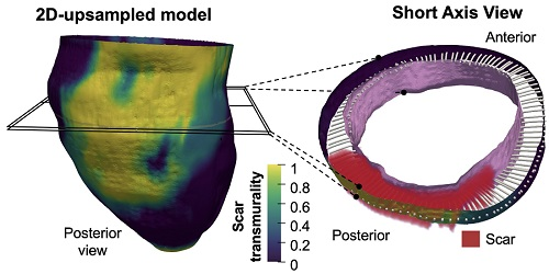 Representative transmurality map from an 3D-upsampled model with a short axis view at high-magnification to illustrate the 3D methodology for transmural-based scar assessment from images obtained with conventional 2D delayed gadolinium-enhanced CMR