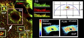 Interacción de proteinas (en magenta) de plataformas adhesivas endoteliales (EAPs) en la membrana plasmática, detectadas por un equipo multifotón y analizadas por FLIM-FRET.