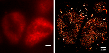 Imágenes tomadas con iluminación oblicua y superresolución dSTORM de núcleos embrionarios preimplantados H3K4me3 histona Alexa 647.
