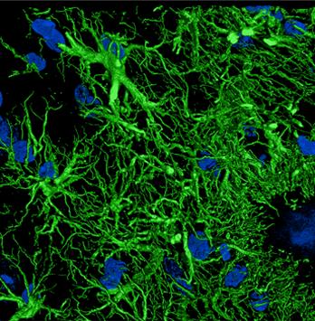 Astrocitos hipertrofiados y reactivos (GFAP-verde) imagen de microscopia Confocal deconvolucionada con Huygens.