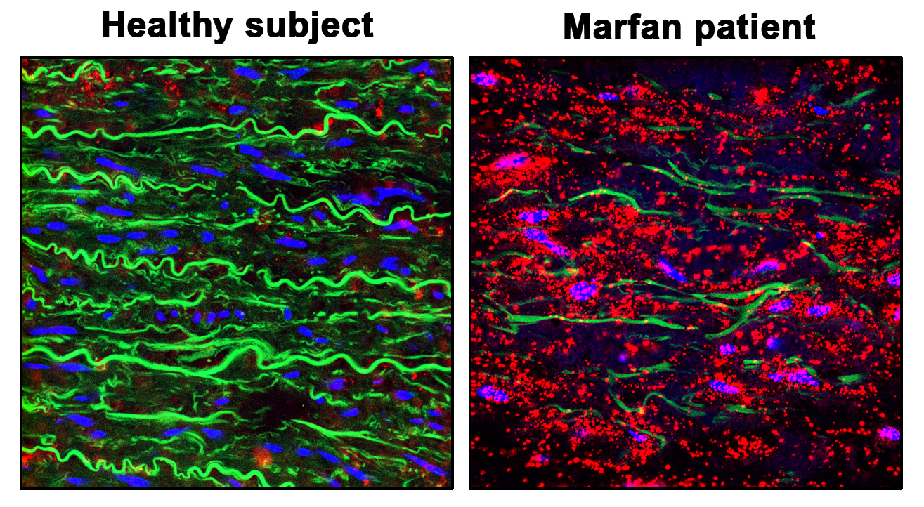 Staining showing pVASP-S239 (red), elastic fibers (green) and nuclei (blue) in the aortic wall of a healthy donor (Healthy Aorta) and a patient with Marfan Syndrome (Diseased Aorta from Marfan Patient). The images show how the NO-sGC-PRKGI pathway is over-activated in the aortic wall from Marfan patien