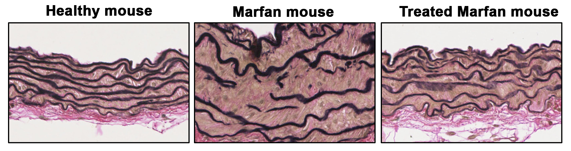 Images of aortic sections from a healthy mouse and from a Marfan syndrome mouse model showing that elastic fibers disarray (black lines) and vascular wall thickening in the Marfan mouse model is reverted upon gene silencing of the Prkg1 protein.