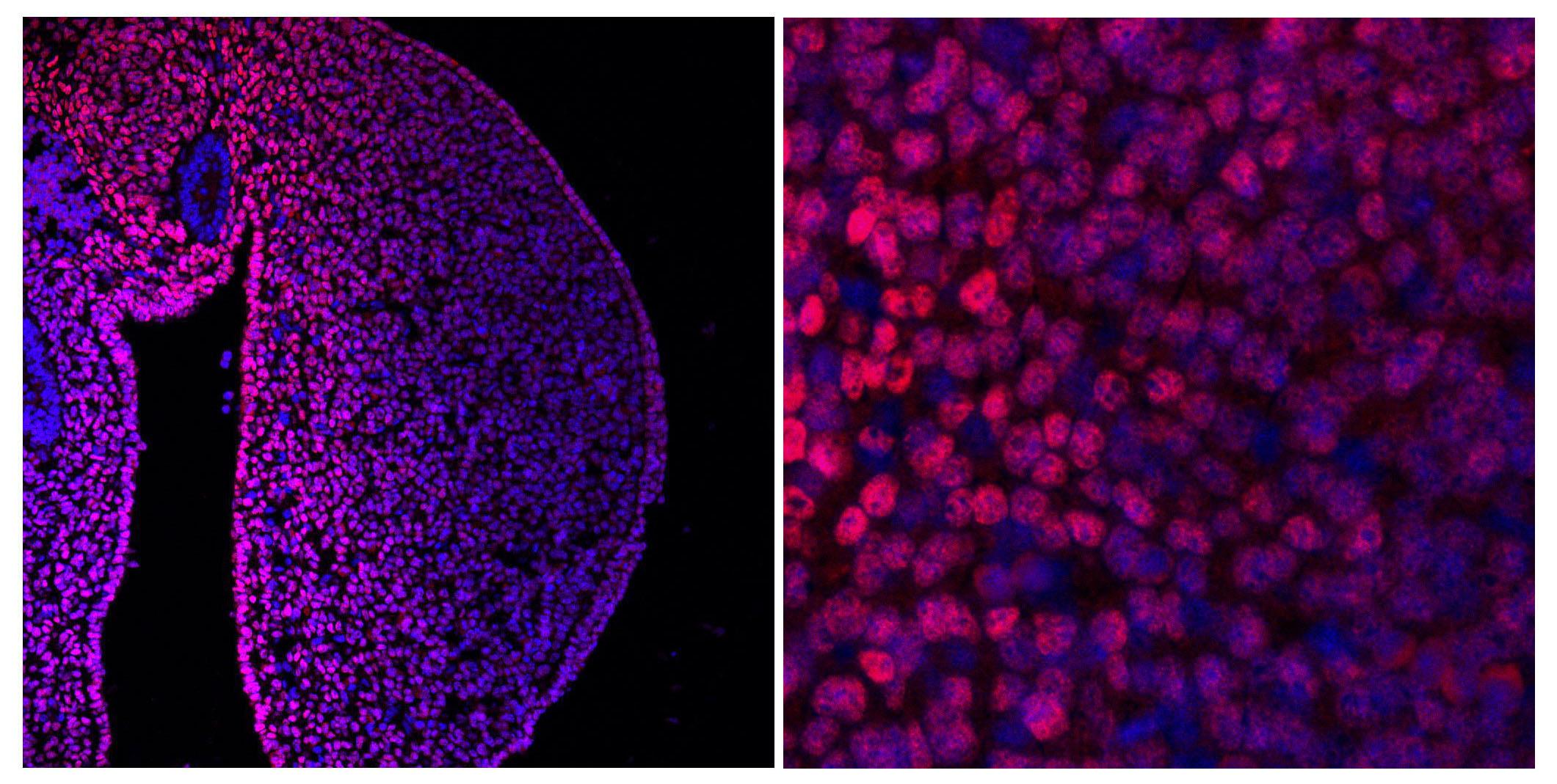 Sección de un primordio de extremidad mostrando en rosa la proteína Meis. En el aumento se aprecian los distintos niveles de Meis en cada célula.