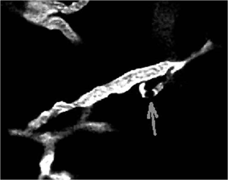 """Capilares cerebrales obstruidos en un modelo de ratón de la enfermedad de Alzheimer. Estas oclusiones, junto con los depósitos parenquimales de fibrina, son características del estado procoagulante en esta enfermedad y son las estructuras que el proyecto """"BioClotAD"""" propone identificar de manera no invasiva."""