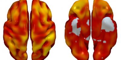 Reconstrucciones tridimensionales cerebral superior (imagen izquierda) e inferior (imagen derecha) donde se muestran aquellas regiones cerebrales con un menor metabolismo cerebral asociado con una mayor carga de placa en las carótidas. El color indica la magnitud de la asociación observada (de mayor a menor: amarillo a rojo. Gris indica zonas sin asociación).