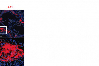 Staining with the A12 antibody (red) in an atherosclerotic plaque