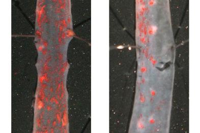 El tratamiento de ratones progéricos con TUDCA ralentiza la progresión de aterosclerosis (visualizada en rojo en aorta torácica).