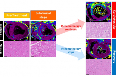 Magnetic resonance images (T2 mapping) and corresponding histological analysis in animals treated with anthracyclines. The subclinical phase is characterized by T2 mapping alterations caused by edema in the cardiomyocytes (evident as vacuoles in the histology images).