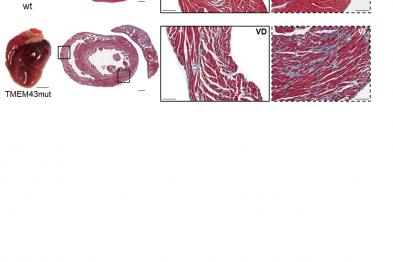 """La expresión de la proteína TMEM43 humana con la mutación p.S358L en el corazón del ratón causa fibrosis cardiaca y dilatación del corazón. Fila superior, corazones de ratones control (wt, """"wild type""""). Fila inferior, corazones de ratones que expresan la proteína TMEM43 mutante (TMEM43mut)."""