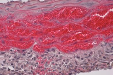 Imagen microscópica de hematoma intramural en el modelo preclínico de la enfermedad. Se muestra la acumulación de la sangre invadiendo la capa media de la aorta.