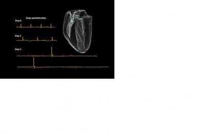 Figura con una secuencia 3D de resonancia magnética nuclear (RMN) cardíaca de un corazón de ratón infectado con el virus de gripe más patogénico y los trazados de ECG mostrando las alteraciones del ritmo cardíaco a distintos días postinfección