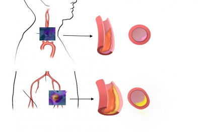 Relationship between plaque characteristics and the presence of inflammation. Plaques with inflammation (positive for 18F-FDG uptake) are more prevalent in the iliofemoral territory (at the bifurcation), tend to be larger, show positive remodeling (growth away from the vessel lumen), and contain larger cholesterol deposits (yellow). Plaques with no inflammation tend to be smaller and lack positive remodeling.